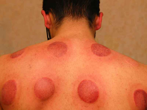 Things to know about hijama therapy